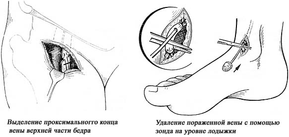 Как остановить кровотечение при ранении вены и некрупных артерий ответ